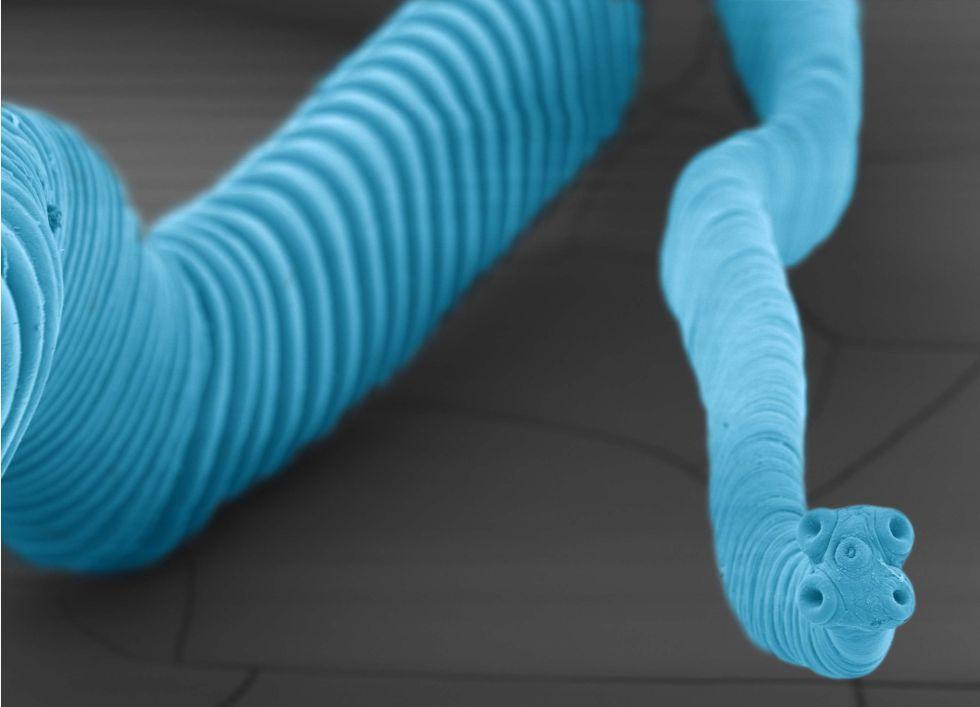 gusano blanco flaco largo