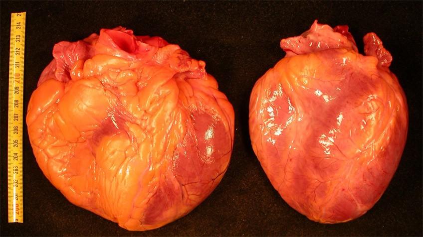 Cuanto tiempo vive una persona con insuficiencia cardiaca