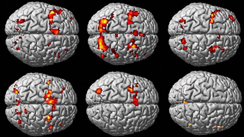 Resultado de imagen para manipulen el cerebro
