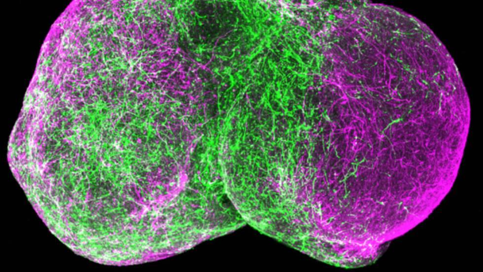 Las células madre se organizan imitando al cerebro humano | Ciencia ...