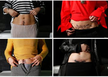 "A combination picture shows women posing with new tattoos which cover their caesarean delivery (C-section) scars at Samurai Tattoo in Shanghai, China, in images taken between March 1, 2017 - April 26, 2017. REUTERSAly Song       SEARCH ""SONG TATTOO"" FOR THIS STORY. SEARCH ""WIDER IMAGE"" FOR ALL STORIES."