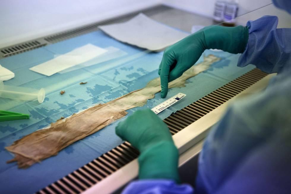 Resultado de imagen para El 'niño mariposa' que regeneró el 80% de su piel gracias a células madre transgénicas