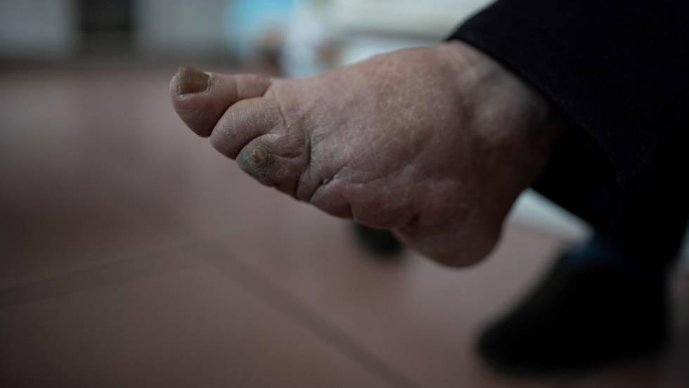 Vídeo La Obsesión Por Unos Pies De Menos De 8 Centímetros Actualidad El País